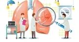 암 사망률 1위 폐암, 원인은?
