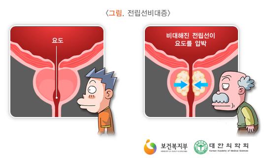 전립선비대증/사진=국가건강정보포털