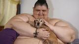 세계서 가장 뚱뚱한 남성 175kg감량…원래 몸무게는?