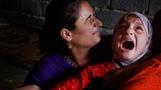 FBI, 미국서 이뤄지는 `여성 할례` 단속 나서