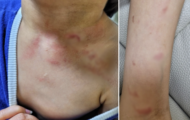 지난 6월부터 어린이집 보육교사에게 폭행을 당한 피해 아동의 목과 팔 부위 상처 / 사진=YTN